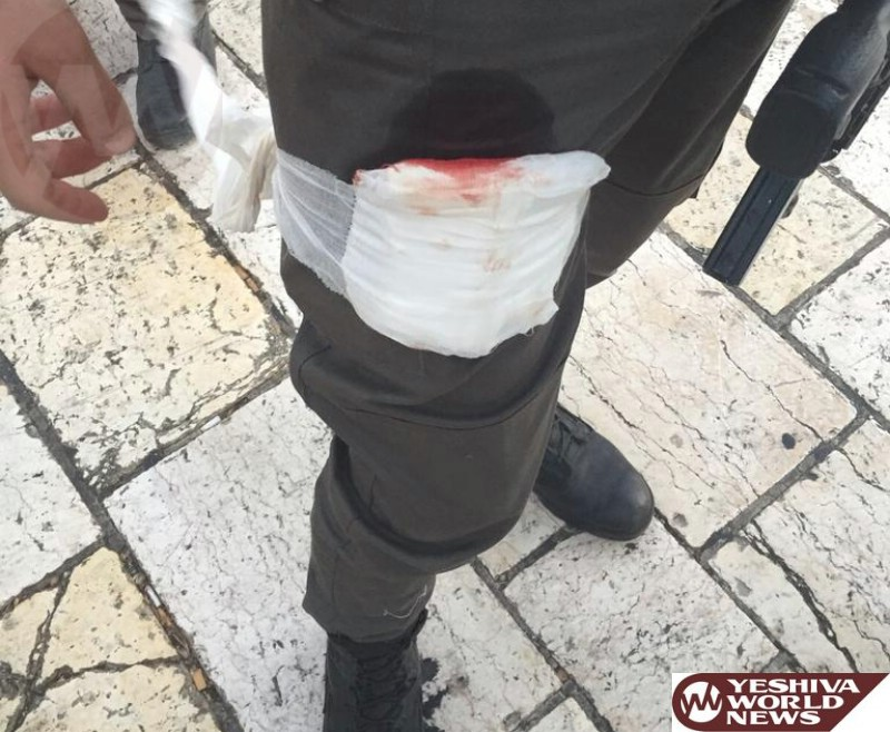 Border Policeman Wounded in Shar Shechem Stabbing Attack