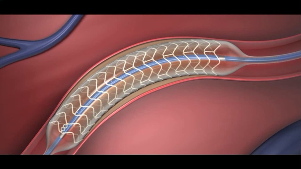 Dissolving Stent For Heart Arteries Passes First Large Test