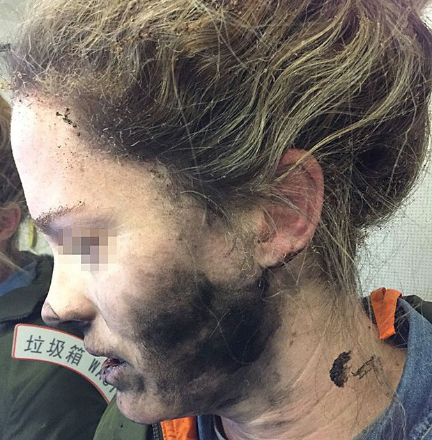 Woman's battery-operated headphones explode mid-flight, suffers burn injuries