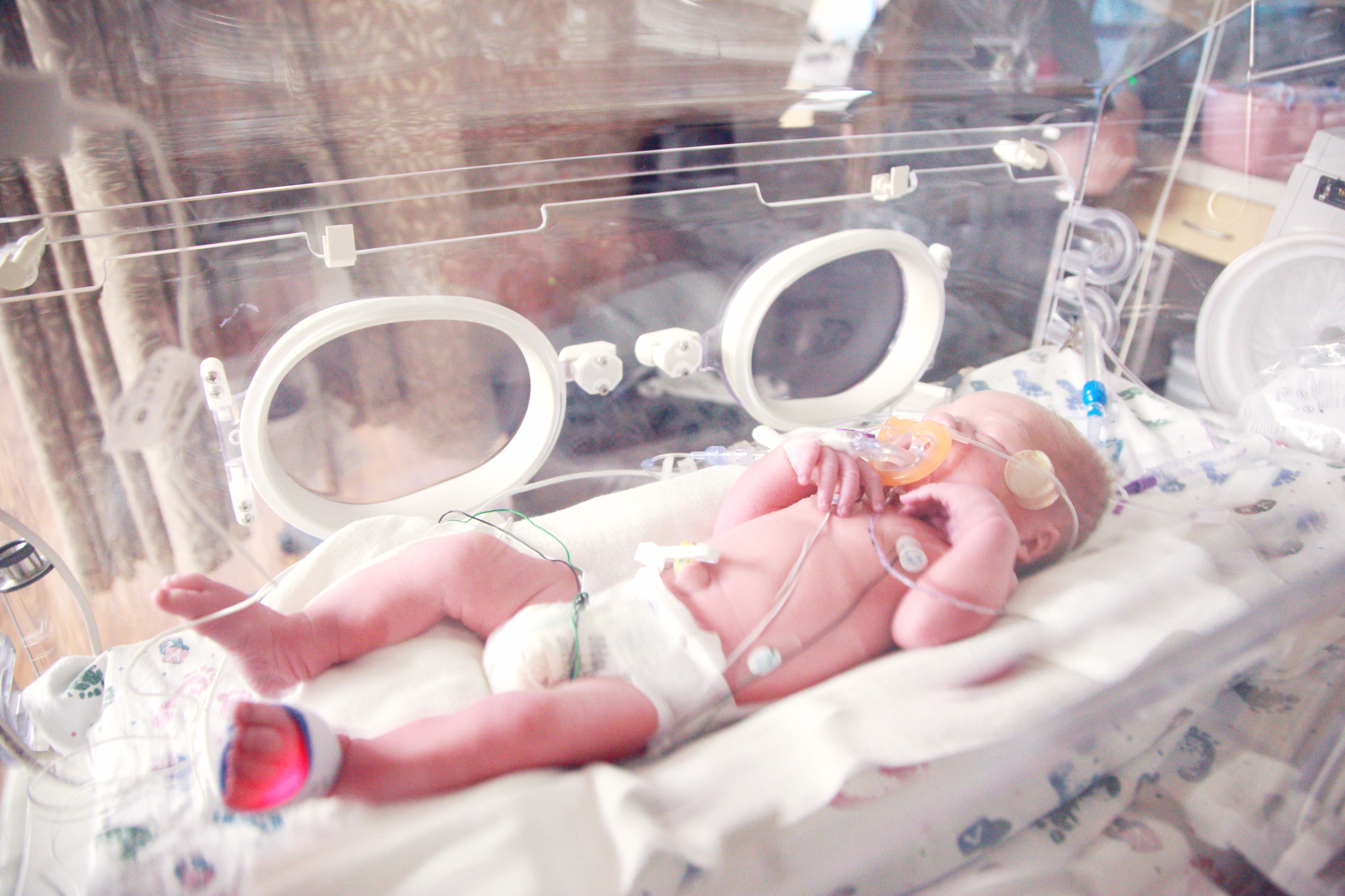 Doctors Perform C-Section When Condition Of 27-Year-Old ...